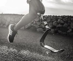 lower-limb prosthetics