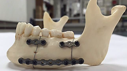 Additive manufactured NiTi mandible fixation plates