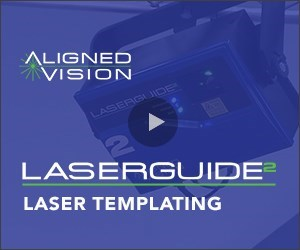 Laser Templating for Composites Fabrication