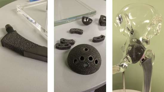Additively manufactured hip implants