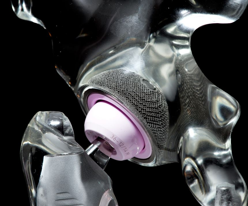 3D-printed hip implant, Additive Manufacturing Magazine