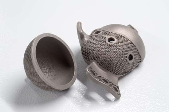 3D printed medical implants