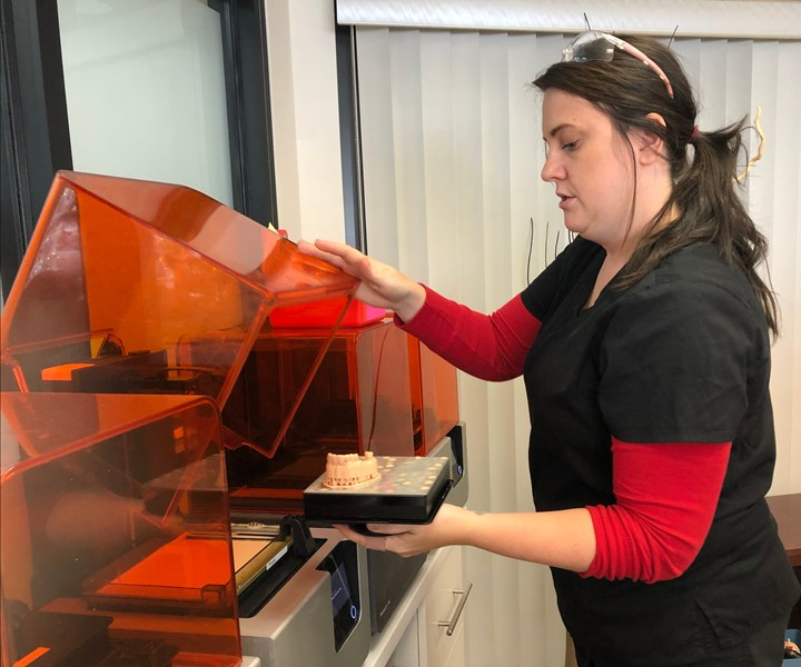 Sarah Wells, Spectrum Dental Printing, removing a dental model from a Formlabs Form2 printer
