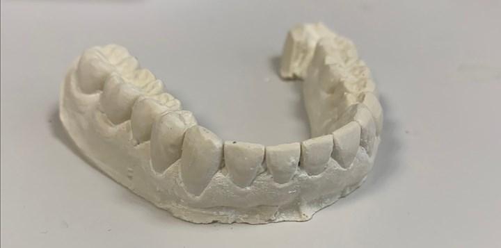 plaster cast teeth model