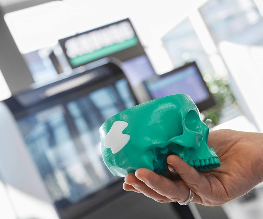 3d-printed biocompatible item