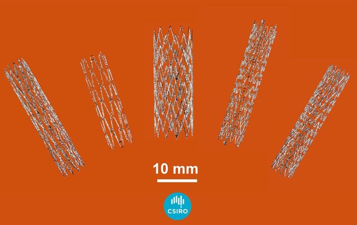various 3d printed nitinol stents