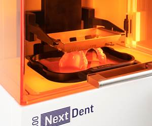 3D Printing Is the Next Step for Digital Dentistry