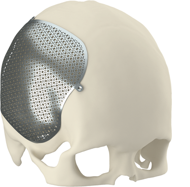 3d printed cranioplasty implant