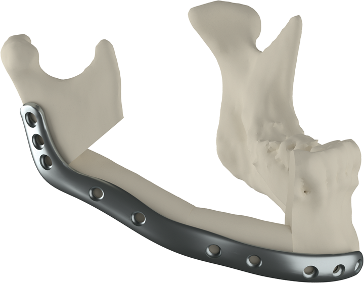3d printed implant for mandible reconstruction