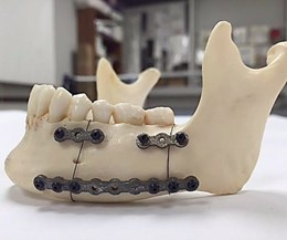 3D-printed fixation plates
