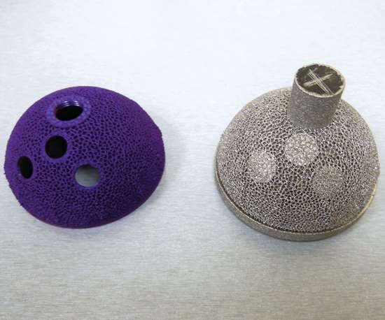 A hip cup depicted after initial additive manufacturing, and also after finish machining and anodizing.