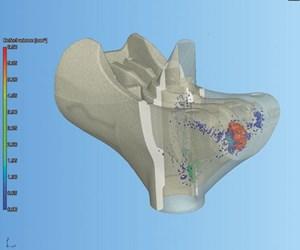CT scanning image