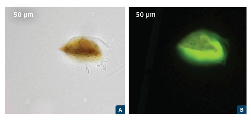 Photomicrographs of gels