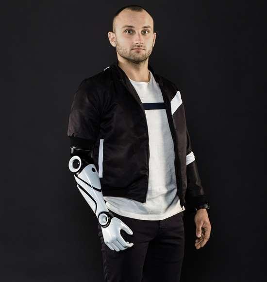 Piotr Sajdak of Glaze Prosthetics