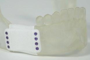 3D Printed Ceramics Serve As Both Bone Graft and Support
