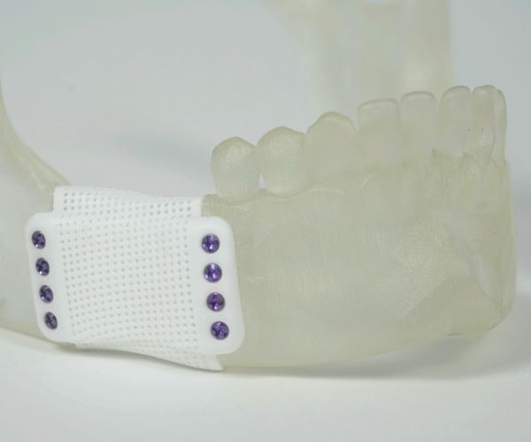 3D Printed Ceramics Serve As Both Bone Graft and Support image