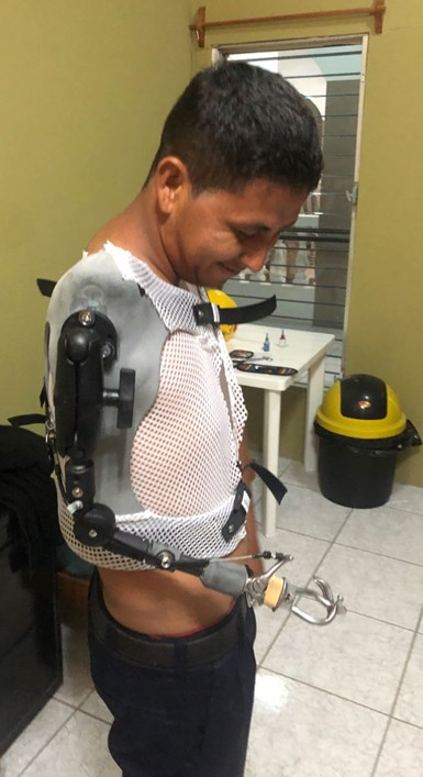 man with an arm prostheses