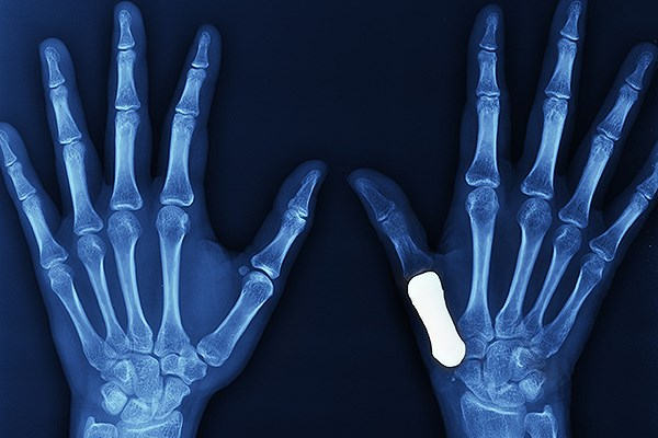 X ray showing a thumb prosthesis