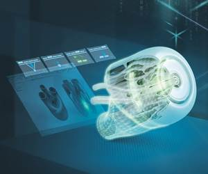 Siemens Offers Free AM Network Services to Doctors and Hospitals