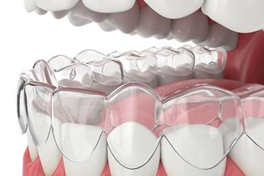 用牙齿矫正器做的牙齿模型。