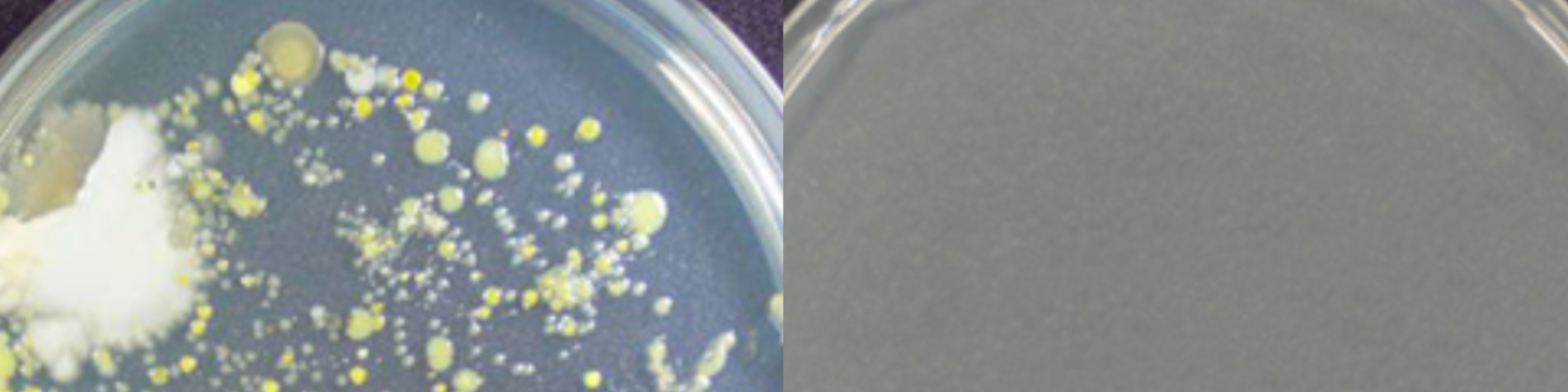 anti-microbial coating