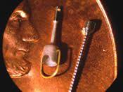 bucket handle stapedial prosthesis